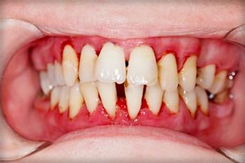 parodontita caz clinic