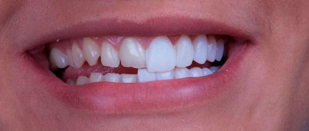pacient inainte si dupa fatete dentare davinci dental clinic