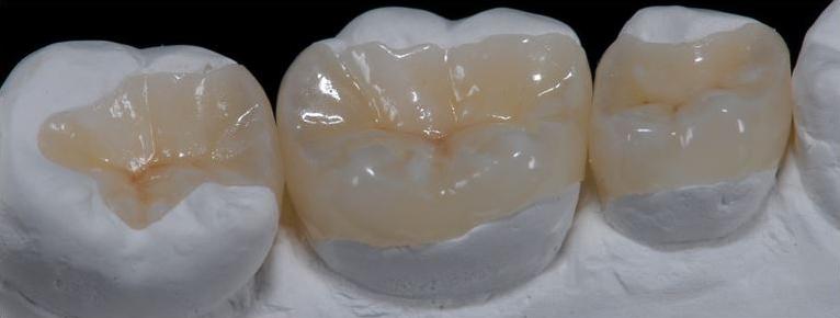 incrustatiile dentare mai bune decit obturatiile