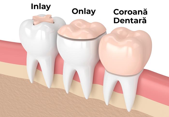 in ce constau incrustatiile si coroanle dentare davinci dental clinic