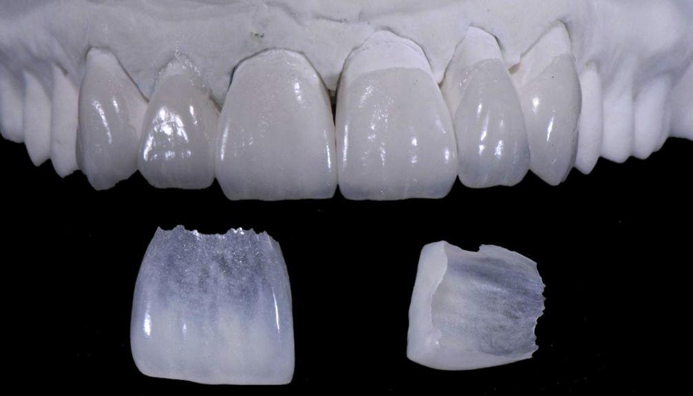 aplicare fatete pe dinte davinci dental clinic