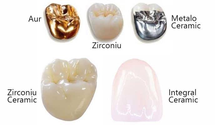 tipuri coroane dentare