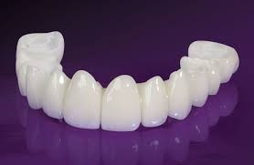 coroana din acrilat davinci dental clinic