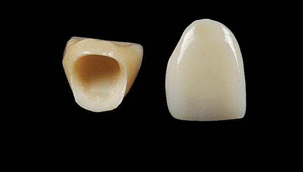 coroane dentara integral ceramice