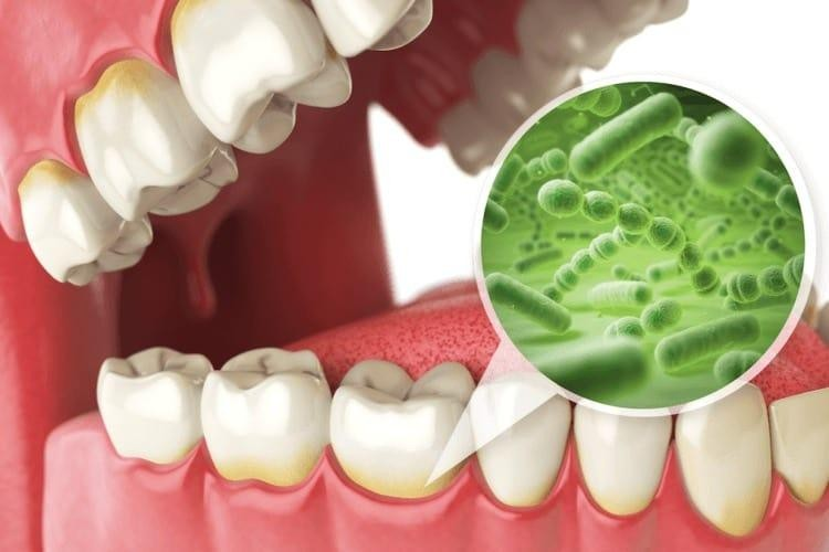 infectie bacteriana orala
