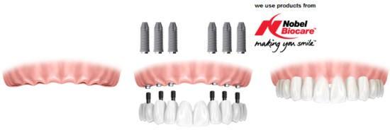 reabilitare implanto-protetica davinci