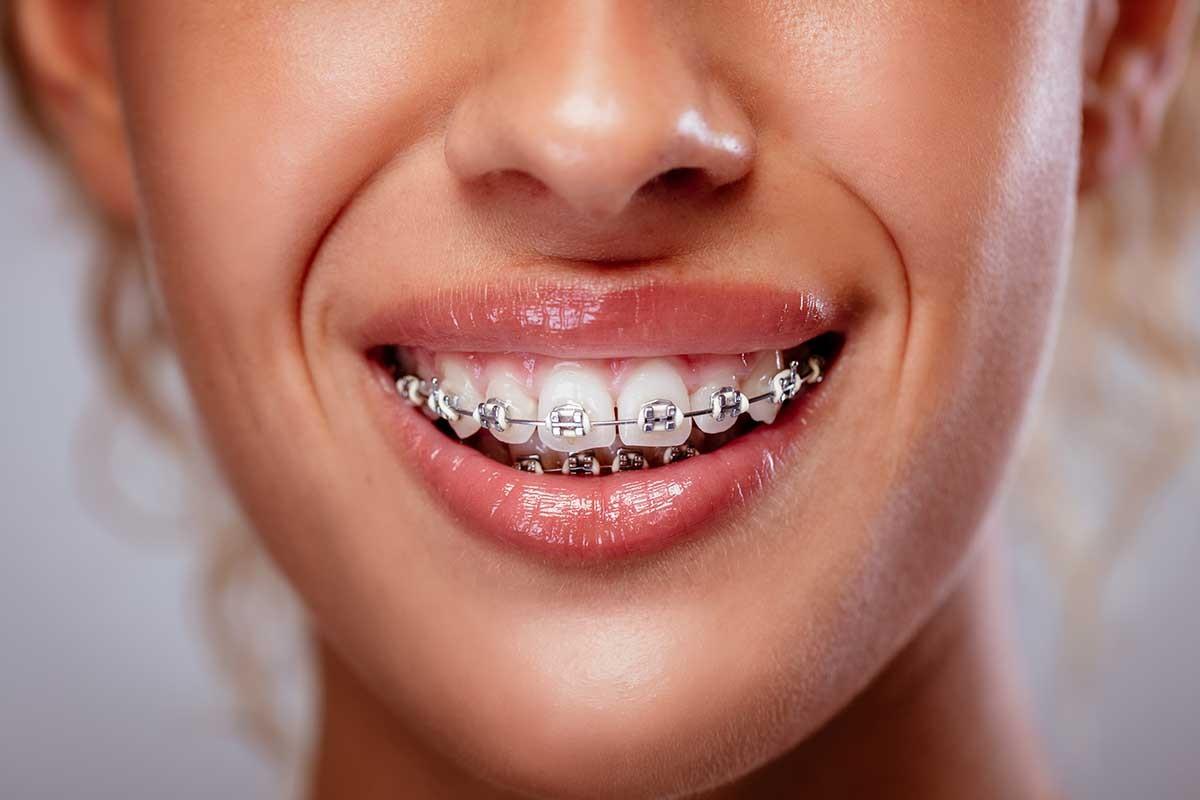 Tratament ortodontic la Davinci dental clinic Chisinau