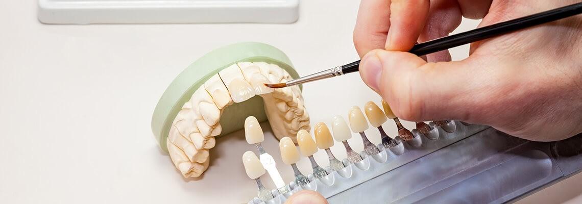 Protezare dentara profesionista de la Davinci dental clinic