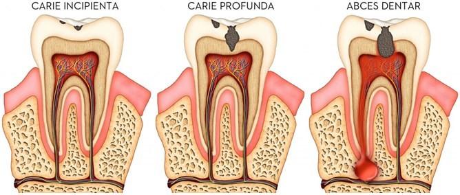 Carii dentare si tratarea lor cu mare eficienta in Chisinau
